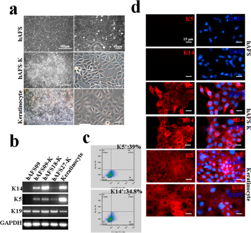 Differentiation of hAFS cells and characterization of hAFS cell-derived keratinocytes(a) The morphology of hAFS cells, hAFS cell-derived keratinocytes (hAFS-K) and human keratinocytes. After induction, hAFS-K exhibited typical pavementous epithelial morphology and spontaneously formed colonies similar to keratinocytes. (b) mRNA expression of K5, K14, K19 in hAFS-K. hAFS cells were used as a negative control and keratinocytes as a positive control. Cropped gels were used, and the gels were run under the same experimental conditions. Full-length images are presented in Supplementary Figure S5. (c) hAFS-K (n = 4) were analysed by flow cytometry after staining with PE-conjugated control isotype IgG (grey peaks) or antibodies against cell surface proteins K5 and K14, showing the differentiation rates to be (40 ± 1.24)% and (35 ± 0.36)%, respectively. (d) Immunofluorescence staining of K5 and K14 (red) in hAFS cells, hAFS-K and keratinocytes. Nuclei (blue) were stained with DAPI. hAFS cells were used as the negative control and keratinocytes as the positive control.