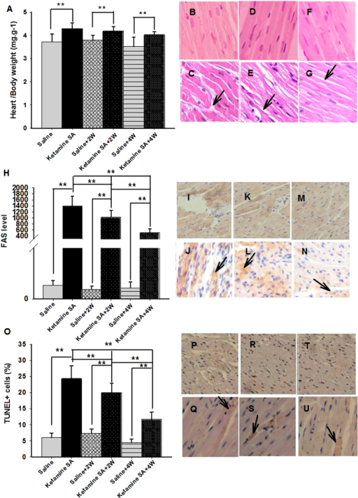 Effects of the duration of abstinence on cardiac toxicity induced by ketamine SA.(A) The heart and body weight ratio of Ketamine SA, Ketamine SA + 2 W and Ketamine SA + 4 W groups and their corresponding control (Saline, Saline + 2 W, Saline + 4 W) groups (B–G). Representative images of H&E staining for a Saline, a Ketamine SA, a Saline + 2 W, a Ketamine + 2 W, a Saline + 4 W and a Ketamine SA + 4 W rat. Arrow represents irregular arrangement of myocardial cell. (H) FAS levels of ketamine SA, ketamine SA + 2 W and ketamine SA + 4 W groups and their corresponding control (Saline, Saline + 2 W, Saline + 4 W) groups. (I–N) Representative images of IHC staining for a Saline, a Ketamine SA, a Saline + 2 W, a Ketamine + 2 W, a Saline + 4 W and a Ketamine SA + 4 W rat. Arrow represents a cell with positive expression of FAS. (O) TUNEL + cells (%) of the Ketamine SA, Ketamine SA + 2 W and Ketamine SA + 4 W groups and their corresponding control (Saline, Saline + 2 W, Saline + 4 W) groups (P–U) Representative images of TUNEL staining for a Saline, a Ketamine SA, a Saline + 2 W, a Ketamine + 2 W, a Saline + 4 W and a Ketamine SA + 4 W rat. Arrow represents an apoptotic cell. Data are expressed as mean ± SEM. FAS: apoptosis stimulating fragment; TUNEL: Terminal deoxynucleotidyl transferase-mediated dUTP nick end-labeling staining; SA: self-administration; W: week; HW: heart weight; BW: body weight.