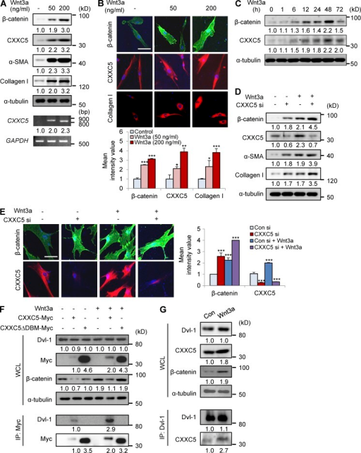 Wnt3a induces CXXC5 expression and enhances CXXC5-Dvl interaction. (A and B) Human dermal fibroblasts (n = 2–3 cells) were treated with or without Wnt3a (50 or 200 ng/ml). (A) WCLs were subjected to Western blot analyses with antibodies against β-catenin, CXXC5, α-SMA, collagen I, or α-tubulin and to RT-PCR analyses with primers for CXXC5 or GAPDH (n = 2 independent experiments). (B) Relative densitometry values are shown underneath blots as ratios relative to the levels of loading control (α-tubulin or GAPDH). The cells were also immunocytochemically stained for β-catenin, CXXC5, or collagen I. Representative ICC images are shown (top), and mean intensity quantitation was performed (bottom; *, P < 0.05; **, P < 0.005; ***, P < 0.0005; n = 3 independent experiments). (C) Human dermal fibroblasts were incubated with 50 ng/ml Wnt3a for 1, 6, 12, 24, 48, or 72 h, and WCLs were subjected to Western blot analyses with antibodies against β-catenin, CXXC5, or α-tubulin (n = 2 independent experiments). Relative densitometric ratios of each protein to α-tubulin are shown. (D and E) Human dermal fibroblasts were treated with 50 ng/ml Wnt3a for 2 d after treatment with control siRNA (Con si) or CXXC5 siRNA (CXXC5 si). (D) Western blot analysis (n = 3 independent experiments) of WCLs was performed with antibodies against β-catenin, α-SMA, collagen I, CXXC5, or α-tubulin. Relative densitometry values are shown underneath the blots as ratios relative to the levels of α-tubulin. ICC analysis (n = 3 independent experiments) of samples in D and E was performed with β-catenin or CXXC5. (E) Representative ICC images are shown (left), and mean intensity values were calculated (right; ***, P < 0.0005). (B and E) Bars, 50 µm. Means ± SD. (F) Human dermal fibroblasts were transfected with pcDNA3.1, pcDNA3.1-CXXC5-Myc, or pcDNA3.1-CXXC5ΔDBM-Myc. WCLs or cell lysates immunoprecipitated with anti-Myc were analyzed by immunoblotting to detect Dvl-1, Myc, β-catenin, or α-tubulin (n = 2 independent experiments). Relative densitometry values are shown below the blots. (G) WCLs from human dermal fibroblasts treated with (Wnt3a) or without (Con) 50 ng/ml Wnt3a for 2 d were subjected to immunoprecipitation with anti–Dvl-1 antibody, and Western blot analyses were subsequently performed to detect Dvl-1, CXXC5, β-catenin, and α-tubulin (n = 2 independent experiments). Relative densitometry values are shown below the blots.