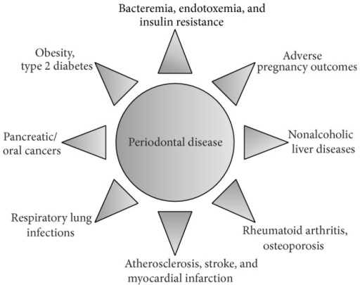 Diagram of periodontal disease leading to other complications.