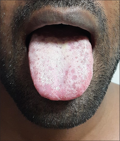 Diffuse loss and atrophy of the filiform papillae on th | Open-i