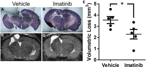 Imatinib reduces tissue loss after TBI. Mice were treated with vehicle or Imatinib (200 mg/kg, twice daily p.o. for 5 days) starting 45 min after unilateral CCI. Twenty one days later, animals underwent MRI T2 scan and then were perfused and fixed in paraformaldehyde and stained with H&E. (A,B) Representative photomicrographs of coronal sections near bregma −1.5 (10× objective) from vehicle-treated (A) and Imatinib-treated (B) mice. (C,D) Representative T2-weighted MRI images from vehicle-treated (C) and Imatinib-treated mice (D). (E) Quantification of volumetric loss of tissue determined from theT2-weighted hyper-intense signal. Data are expressed as mean ± SEM (n = 5) and the single asterisk indicates p < 0.05.