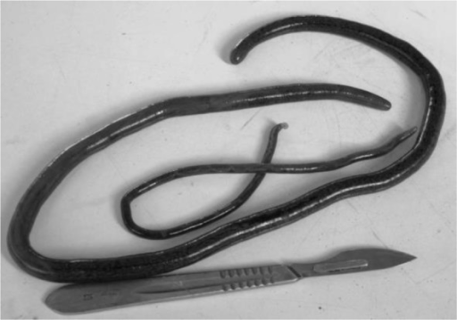 The worms were a pair of male and female D. renale measuring 30 cm long with a maximum width of 3.8 mm and 60 cm long with a maximum width of 5 mm, respectively