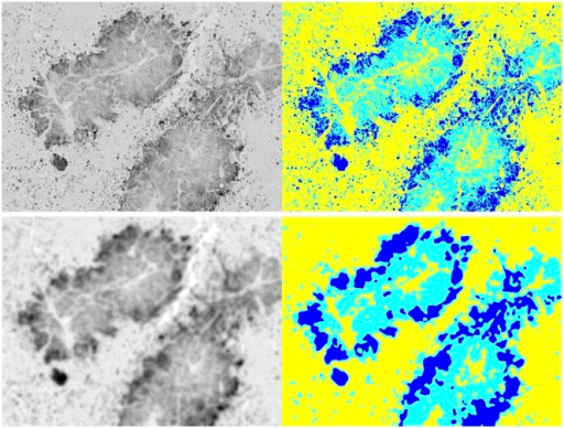 Otsu segmentation and smoothing.How Otsu's multithreshold segmentation differs between unsmoothed gray (upper left) and smoothed gray (lower left) images. Corresponding images on the right show dark blue regions that denote hypoxic cells, light blue regions that denote viable cells, and yellow regions that denote necrotic cells.