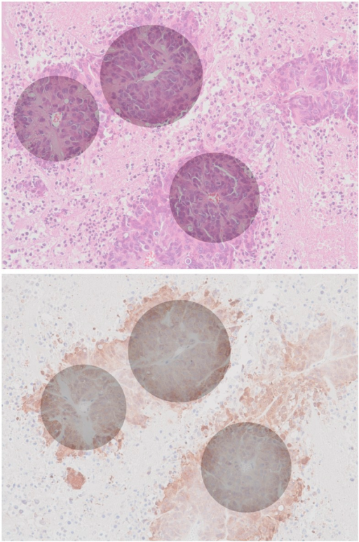 Synthetic histology.Inferred hypoxia gradients (gray) superimposed onto the canonical raw H&E (top) and anti-pimonidazole (bottom) images at half-opacity. Note that the positions of the gradient centers have been corrected as per our earlier observation regarding adjacent image registration (see S7 Fig).