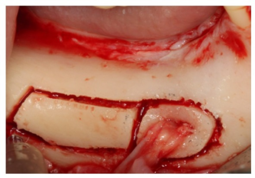 Osteotomy lateral to the mandibular canal involving the mental foramen.