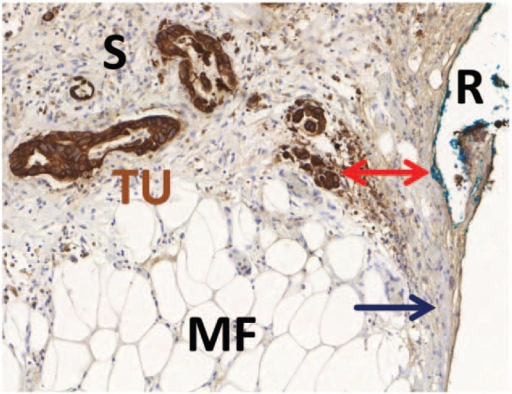 Conventional and histopathological margin status assessment. Example of a tissue slide from the mesopancreatic margin with brown immunohistochemical staining for Pan-Cytokeratin for better visualization of tumor cells. The tumor cells (TU) are surrounded by a dense fibrotic stroma (S) and invade the mesopancreatic fatty tissue (MF). The closest distance to the inked resection margin (R) is marked by a red arrow. Although no tumor cells are found directly at the resection margin, there is broad contact of the fibrotic stroma to the resection margin. Margin status in this case is negative by conventional R-status (R0, zero tumor cell distance rule), but positive by circumferential margin concept (CRM+, 1-mm tumor cell distance rule) and positive by stromal clearance concept (S+, zero stroma distance rule). For details see manuscript text.