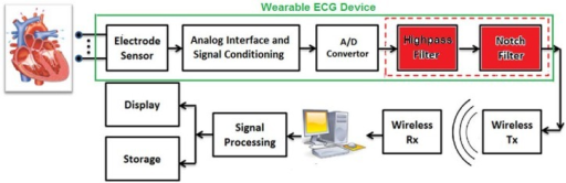 A schematic presentation of a wearable ECG device where the captured signal is transmitted (through a wireless channel) to a remote backend system for further processing.