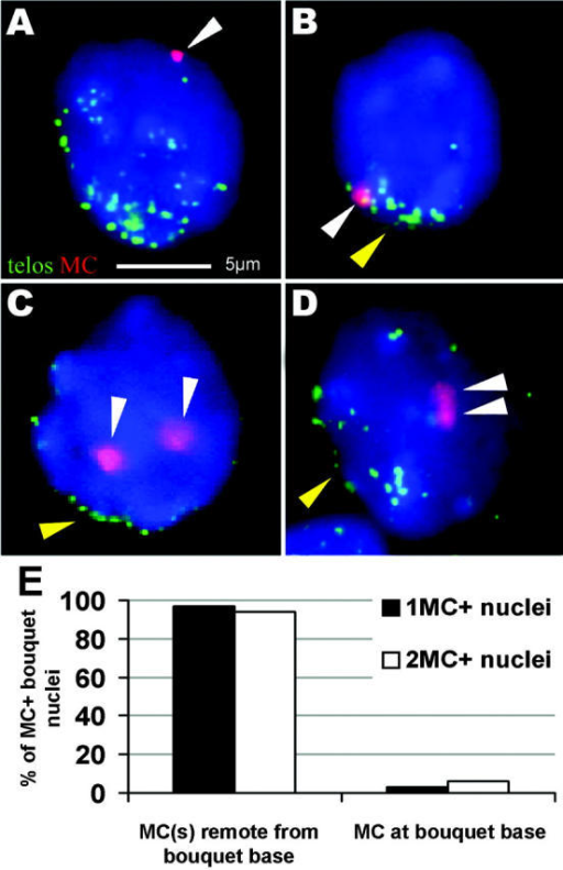 MCs locate remote from the telomere cluster in bouquet nuclei. (A and B) FISH with a (C3TA2)3 PNA telomere probe (green) and an α-satellite DNA MC probe (red; white arrowhead) on monosomic bouquet stage nuclei (1MC+-30; 12 d post partum). (A) A spermatocyte I with one MC located remote from the telomere cluster at the top of the nucleus (the latter faces the observer). (B) Spermatocyte with the MC located among the tightly clustered telomeres at the bouquet base (yellow arrowhead). Focal plane near the nuclear top. (C and D) Bouquet stage nuclei of a 12-d post partum disomic mouse (2MC+-7). (C) Two separate MCs (white arrowheads) located away from the bouquet base (yellow arrowhead). Focal plane at nuclear equator. (D) Spermatocyte I nucleus with relaxed telomere clustering and two paired MCs (white arrowheads) that create a single large MC signal in the nuclear interior below. Focal plane at the nuclear top. The bar in A represents 5 μm and applies to A–D. (E) Distribution frequencies of MCs with respect to the telomere cluster site. Two MCs were generally absent from the telomere cluster region.