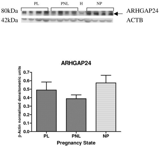Representative Western blot of ARHGAP24 expression in samples of PL (n = 4), PNL (n = 4) and NP (n = 4) human myometrium, and HeLa cells (H). The corresponding ACTB protein expression is presented underneath. Protein bands of interest are indicated with arrows and molecular weights are indicated in kDa. Quantitative densitometric analysis of the western blot is presented, with β-Actin normalised densitometric units for each protein plotted against pregnancy state ± SEM (indicated with error bars).