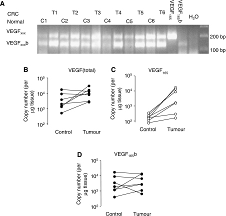 VEGF165b mRNA is expressed in human colon tissue and colon cancer. (A) VEGFxxxb mRNA is expressed in normal and cancerous colon. PCR of cDNA reverse transcribed from RNA extracted from paired human colon samples shows two bands, the proximal splice isoforms (VEGFxxx, ∼200 bp) and the distal splice isoforms (VEGFxxxb, ∼135 bp). (B–D) Q-PCR for pan-VEGF (VEGF165b and VEGF165) and VEGF165 isoforms. (B) Primers that detected all 165 amino acid-coding isoforms were used to detect increasing amounts of total VEGF (VEGF165b and VEGF165). (C) Exon 8a-specific primers were used to measure the amount of VEGF165, which was significantly increased in colon cancers, P<0.01. (D) VEGF165b levels calculated from the VEGF165 and total VEGF levels.