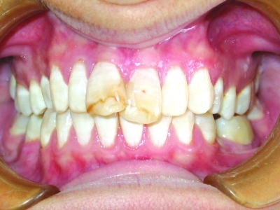 Chalky white appearance of fluorosed teeth.