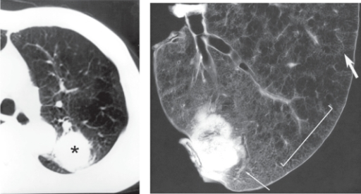 Panacinar emphysema in a case with bronchogenic carcinoma. a. Preoperative CT showing a diffuse low attenuation area in the left upper lobe. The lung tumor is also observed in the dorsal portion of the left upper lobe (asterisks). b. Contact photograph of the resected specimen. Panacinar emphysema is diffusely observed, but the dorsal area has a normal appearance. There is no clear border between these regions and the change is gradual (bar). The caliber of the pulmonary artery in the involved area is markedly narrowed (large arrow) compared to that in normal lung (small arrow).