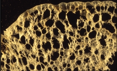 Aging lung. Magnified photograph of a specimen showing slight enlargement of respiratory bronchioles and alveolar ducts. Clear destruction of the alveolar wall is not apparent.