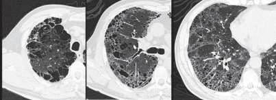 Combined pulmonary fibrosis and pulmonary emphysema (CPFE) in a 59-year-old male who was a heavy smoker: High resolution computed tomography images.In the upper lung field (a), a prominent bullous change is apparent. In the middle lung field (b), tiny air cysts (arrows) with ground-glass opacity are present in addition to the bullous changes. In the lower lung field (c), distributed tiny air cysts with definable walls and ground-glass opacity are apparent. These features are consistent with interstitial fibrosis rather than pulmonary emphysema.