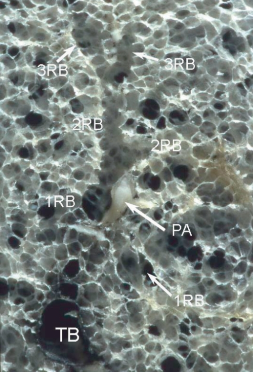 Terminal and respiratory bronchioles. Specimen photograph demonstrating ramification of the two 1st respiratory bronchioles (1RB) from the terminal bronchiole (TB). The respiratory bronchiole wall has alveolar pores. After branching of the respiratory bronchiole 2 to 3 times (2RB, 3RB), the number of alveolar fenestrations increases gradually and these eventually change into the alveolar duct and then the alveolar sac.