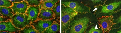 Endothelial cells normally stick together (left), but thrombin opens gaps between them (arrowheads, right).