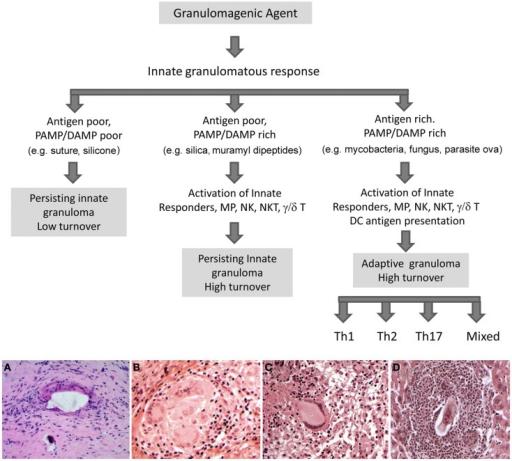 Potential fates of the innate granuloma. In the immunoc
