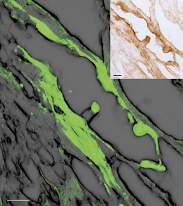 Confocal imaging of direct fluorescence of GFP-positive MSCs injected in normal isolated hearts 2 hrs after injection. The upper right box shows peroxidase immunostaining with a-GFP antibody of the same slide demonstrating that the observed fluorescence was not due to autofluorescence of cardiomyocytes. Scale bars: 20 μm.
