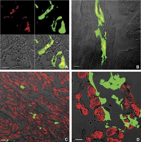 Confocal imaging of direct fluorescence GFP-positive MSCs (green) and nuclear immunostaining with anti-GATA-4 antibody (red) in normal (A) and infarcted (B) hearts. (C, D) Immunostaining with α-actinin antibody (red in C) or troponin T (red in D) in normal hearts 4hrs after injection. Where the red labellingis superimposed to the green, the system displays it yellow. Scale bars: 20 μm.