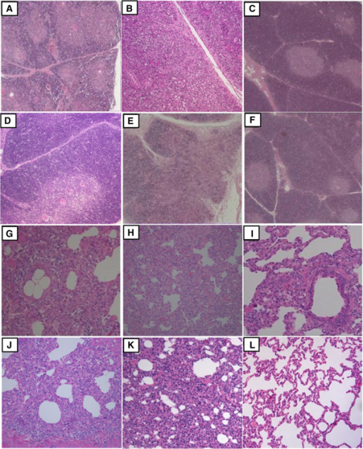 Pathological examinations of the thymus and lung on 28 DPC. Thymus of a piglet from Group 1 (A), Group 2 (B), and Group 5 (E) showed blurred boundaries between the thymus cortex and medulla. Thymus of a piglet from Group 3 (C), Group 4 (D) and Group 6 (F) showed no microscopic lesions (magnification × 50). Lungs of a piglet from Group 1 (G), Group 2 (H) and Group 5 (K) showed interstitial pneumonia lesions, lungs of a piglet from Group 3 (I) and Group 4 (J) showed mild interstitial pneumonia, and a Group 6 piglet (L) was normal (magnification × 200).