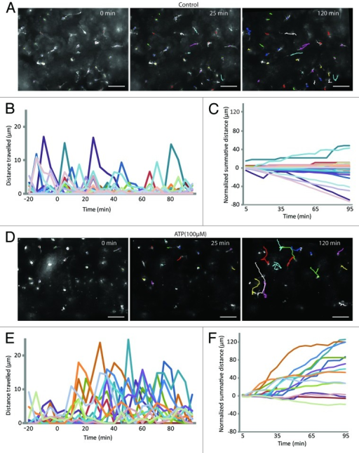 Figure 2. Extracellular ATP triggers chemokinesis of epiplexus cells. (A and D) Representation of the tracked paths superimposed on the original image under control conditions and in the presence of exogenous 100 µM ATP. Labels in the top right of the images represent the time relative to the start of the experiment (0 min). Note the 25 min was the end of the baseline and 120 min was the end of the experiment. Scale bar is 50 µm. Raw data showing the distance traveled by individual epiplexus cells in control (B) and in the presence of ATP (E). Each colored line represents an individual epiplexus cell. (B and E) Raw distance traveled during 5 min intervals; (C and F) normalized summative distance traveled.