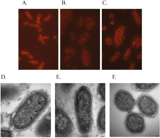 Localizing the F1 capsule by microscopy.Y. pestis strains were grown at 37°C in HI broth containing CaCl2 and exposed to an antibody against the F1 capsule. IFM samples: A) wild-type, B) ΔtatA mutant, and C) complemented ΔtatA mutant. The images (100×) were captured for all samples at identical camera settings to maintain relative fluorescence. IEM samples: D) wild-type (micron bar = 0.1 µm), E) ΔtatA mutant (micron bar = 0.1 µm), and F) C12, F1 negative (micron bar = 0.5 µm).