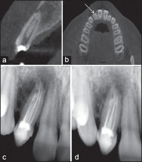 (a) cone beam computed tomogram (CBCT)– sagittal view. (b) CBCT– axial view. (c) Radiograph taken after root canal filling and placement of temporary restoration in the access cavity. (d) Follow-up radiograph after 12 months showing signs of healing