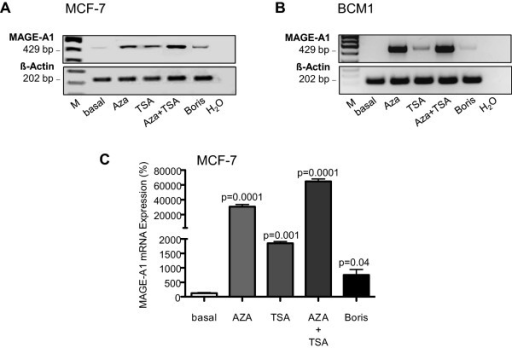 Comparison of the MAGE-A1 mRNA expression in 5-aza-CdR- and/or TSA-stimulated MCF-7 and BCM1 cells with the expression in BORIS-transfected cells. RT-PCR products of MAGE-A1 mRNA expression prior and after stimulation of MCF-7 (A) and BCM1 cells (B) with the demethylating agent 5-aza-CdR and/or the histone deacetylase inhibitor TSA or after transient transfection of these cells with an expression plasmid encoding for BORIS were separated on an agarose gel. The bar chart shows the relative changes in mRNA expression levels of MAGE-A1 in MCF-7 cells by quantitative real-time PCR. The significant p-values are shown (C). H2O lane serves as a negative control. The housekeeping gene β-Actin was selected as an internal control due to the lack of influence of any stimulation involved.