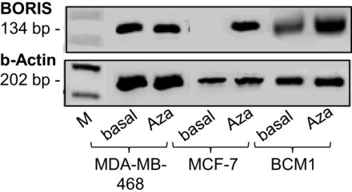 BORIS mRNA expression in MDA-MB-468, MCF-7 and BCM1 cells,untreated or treated with 5-aza-CdR. RT-PCR products of BORIS mRNA were separated on an agarose gel.