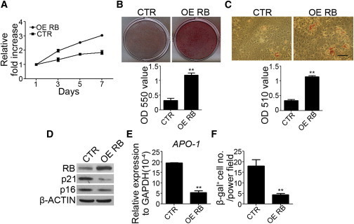 Overexpression of RB in Late-Passage MSCs Increased the Proliferation Rate and In Vitro Osteogenic and Adipogenic Differentiation Potential, and Reduced Senescence MarkersLate-passage MSCs were transfected with control (CTR) or RB overexpression vectors (OE RB).(A) MSCs without or with RB overexpression were seeded at 4.5 × 103 /cm2 and cultured for 7 days. MTT assay was performed during the indicated period, and data are shown as the relative fold increase.(B) MSCs without or with RB overexpression were treated with OIM. Upper: representative pictures of alizarin red S staining at 2 weeks. Lower: optical density measurements of extracted alizarin red S staining.(C) MSCs without or with RB overexpression were treated with AIM. Upper panel: representative pictures of oil red O staining at 2 weeks. Lower panel: optical density measurements of extracted oil red O staining.(D–F) Western blot analysis (D), quantitative RT-PCR (E), and β-gal staining (F) of MSCs without or with RB overexpression.The results are expressed as mean ± SD of three independent experiments. Asterisks indicate significant differences (∗∗p < 0.01). Scale bar, 50 μm. See also Figure S3.