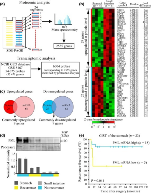 Integrated proteomic and transcriptomic analysis shows promyelocytic leukemia (PML) downregulation in gastrointestinal stromal tumors (GIST) of the small intestine (I-GIST), and its potential as a prognostic biomarker. Workflow of the proteomic and transcriptomic analysis (a). Heat-map of the genes differentially expressed at the protein level (b). Venn diagrams showing the numbers of commonly upregulated and downregulated genes at both the protein and mRNA levels (c). Western blotting shows the differences in PML expression between the samples used for proteomic analysis (d). Kaplan–Meier analysis of recurrence-free survival according to the expression of PML mRNA in S-GIST of GSE8167 (e).