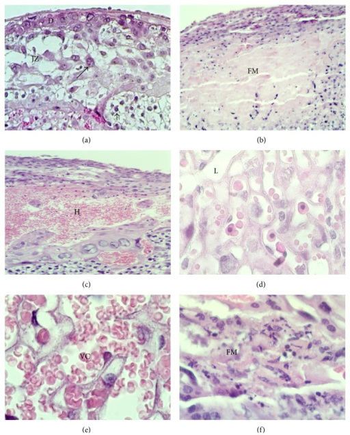 Morphologic alterations found in placentas from female mice exposed to NaAsO2 in water. Microphotographs show the decidua (D), junction zone (JZ), and labyrinth (L) zones of murine placenta. (a) Normal morphology of murine placenta and the trophoblast giant cells (arrows) and clusters of glycogen trophoblast cells (arrowheads) are shown in JZ and near to L. Magnification 10x. (b) Infarct and deposits of fibrinoid material (FM) present in JZ and L. (c) Hemorrhagic lesion located in D zone found in placenta from a NaAsO2 exposed female. Magnification 10x. (d) Normal appearance of the L zone present in placenta from a nonexposed female. Magnification 60x. (e) Vascular congestion (VC) located in L zone present in the placenta from a NaAsO2 exposed female. Magnification 60x. (f) Magnification of fibrinoid material (FM) in the placenta from a female exposed to NaAsO2. Magnification 60x. H&E stain.