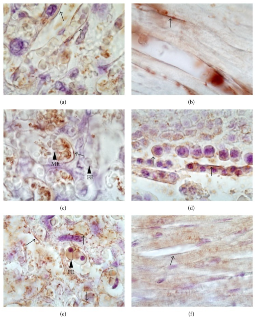 Immunelocalization of glucose transporters in placenta of female mice. The photomicrographs represent immunelocalization of GLUT transporters in placenta from nonexposed females. Samples were counterstained with hematoxylin after an immunohistochemical procedure. (a), (c), and (e) show a positive signal for GLUT1, 3, and 4, respectively, (arrows) in mouse placenta. GLUT1 was identified on both sides of the maternal-fetal interface while GLUT3 was localized mainly in the fetal endothelium. GLUT4 was detected in both syncytiotrophoblast and stromal cells. Positive controls were mounted in rat tissues: (b) heart for GLUT1; (d) testis for GLUT3; and (f) heart for GLUT4. The signal for GLUT1 and GLUT4 was localized on myocytes sarcoplasm and GLUT3 in cytosol of Sertoli cells. ME: maternal erythrocyte; FE: fetal erythrocyte. Magnification 60x.