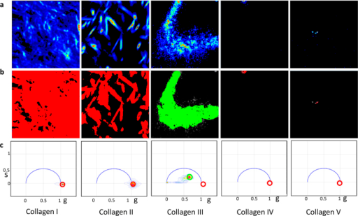 Signals in the SHG channel for gels of collagen I to V.(Fig. 2a) SHG intensity image of collagen I to V (left to right). (Fig. 2b) SHG intensity images overlapped with the color mask chosen in the phasor plots (Fig. 2c). Red cursor was used to select the phasor points of zero lifetime (SHG) and the green cursor was used to select the fluorescence phasor points (non-zero lifetime). It is evident that the signal in the SHG channel for the collagen III (Fig. 2a) can be identified with fluorescence since the position in the phasor plot is not at the (1,0) position.
