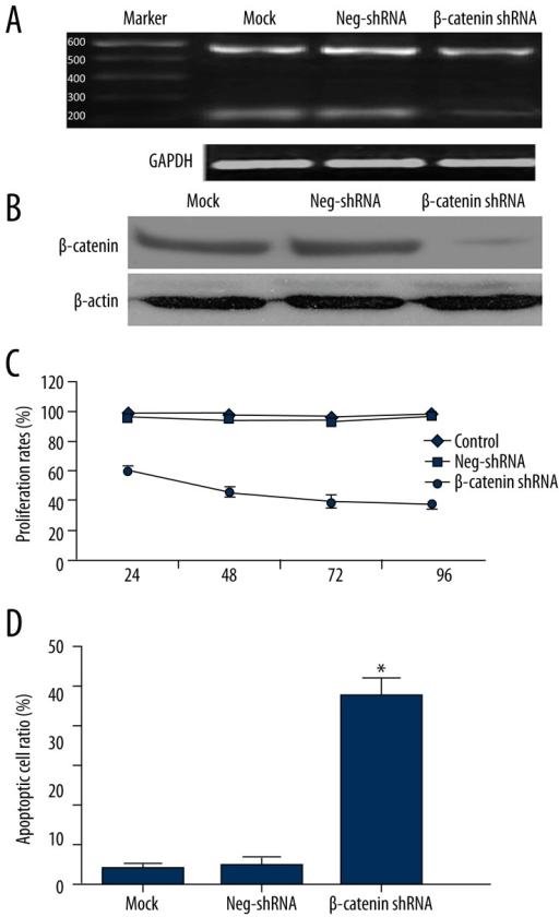 β-catenin regulates proliferation and apoptosis in Jeko-1 cells. (A) Jeko-1 cells transfected with non-targeting (NT) shRNA or β-catenin shRNA were tested for β-catenin mRNA levels using RT-PCR. β-catenin mRNA was significantly suppressed by β-catenin shRNA (rightmost lane); (B) Western blotting analysis indicated that β-catenin protein was largely eliminated by β-catenin shRNA transfection; (C) MTT assays showed that β-catenin knockdown reduced the viability of Jeko-1 cells. (P<0.01 by two-way ANOVA; n=3); (D) Quantification of apoptotic cell percentage by flow cytometry. β-catenin knockdown cells were composed of a larger subset of apoptotic cells compared to the control cells. (P<0.01 by t test; n=3). Data presented as mean ±SD.