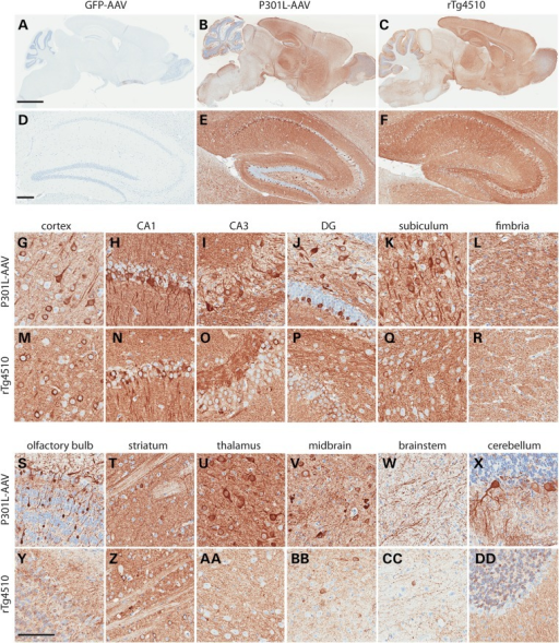 Widespread expression of human tau in AAV1-TauP301L model of tauopathy. Human tau-specific antibody (E1) reveals high level of expression throughout the brain and hippocampus in AAV1-TauP301L-injected (b and e) and rTg4510 mice (c and f), whereas AAV1-GFP-injected mice are negative (a and d). AAV1-TauP301L is also highly expressed throughout the hippocampal network (g–l), as well as other regions of the brain (s–x). The pattern of human tau expression in the hippocampal network (m–r) and other regions of the brain (y-dd) is shown in comparison with rTg4510 model. Scale bar in a–c equals 2 mm; scale bar in d–f equals 200 µm; scale bar in g–dd equals 100 µm.