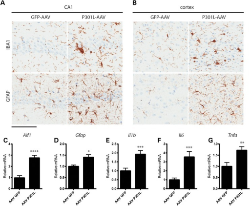 Tau pathology is associated with robust gliosis and inflammation. (a and b) Microgliosis and astrocytosis detected by Iba1 and GFAP, respectively, in the CA1 field of the hippocampus (a) and cortical regions (b). (c–g) Inflammatory markers were evaluated by RT-qPCR. (c) Aif1 (t = 5.3, P < 0.0001), (d) Gfap (t = 2.5, P = 0.017), (e) Il1b (t = 3.15, P = 0.004), (f) Il6 (t = 3.17, P = 0.004) and (g) Tnfa (t = 2.9, P = 0.007) were all significantly elevated in AAV1-TauP301L mice compared with AAV1-GFP controls. Scale bar is equal to 100 µm *P < 0.05, **P < 0.01, ***P < 0.005, ****P < 0.0001.