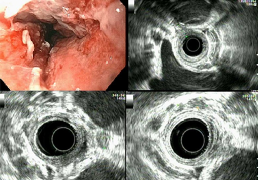 Endoscopic ultrasound (EUS) identified a hypoechoic mass in the lower third of the esophagus, encountered at 35 cm from the incisors and extended to 38 cm which was the furthest the echoendoscope could be advanced due to the stenosis. The endosonographic borders were irregular, and a T3 lesion with multiple benign-appearing lymph nodes was detected. EUS guided biopsies showed poorly differentiate adenocarcinoma.