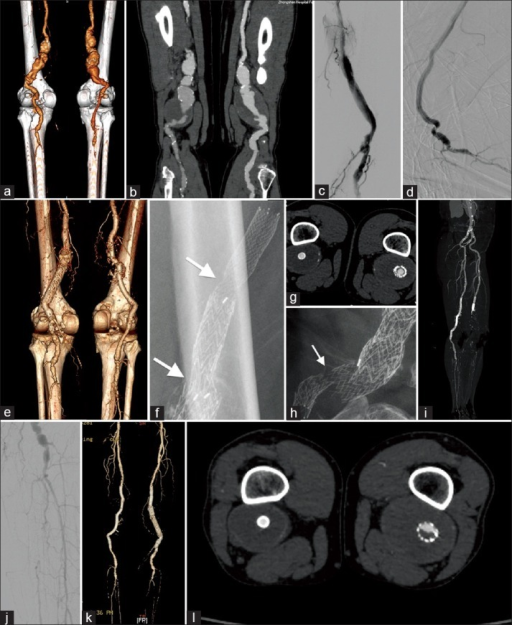 Computed tomography angiogram (CTA) showed bilateral popliteal artery aneurysms (PPAs) with a two-vessel run-off peripherally (a) and thrombus within the aneurysm sacs (b). The postprocedure angiography highlighted the results after stent placement with Excluder Extension (EE) stent grafts and two bare stents (c). Digital subtraction angiography showed the knee flexion angiography after stent placement with Viabahn stent grafts (d). CTA at 6 months showed 100% patency of the stent grafts, aneurysm exclusion, and three-vessel run-off peripherally (e and g). The X-ray showed a restenosis in the proximal region of the EE (arrows, f) and stent fracture in the distal bare stent (arrow, h). Postoperative CTA showed acute thrombosis in the left popliteal artery and below the knee. The vessels in the right lower extremity still retained patent (i). After thrombolytic therapy, the popliteal, anterior tibial, and posterior tibial arteries were almost patency (j). During the following-up, the EE involved thrombosis in the middle of the graft, but the Viabahn was without (k and l).