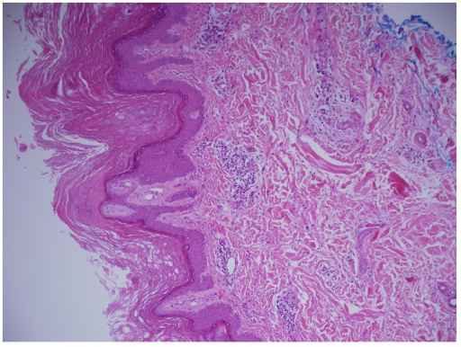Skin biopsy shows acanthosis and papillomatosis with focal dermal perivascular lymphocytic infiltrate (10x).