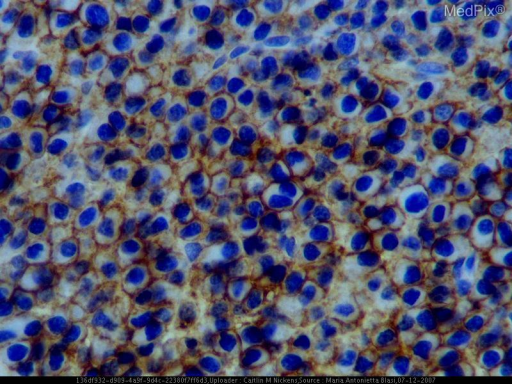 Immunohistochemical stains positive for monoclonal light kappa chains, CD 138 (specific marker for plasma cells)
