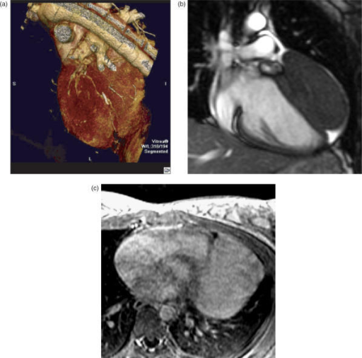 Left ventricular fibroma on 3D reconstructed CT (a) and MRI. Frame from a coronal T2-weighted cine TrueFISP MR sequence (b) shows a large epicardial mass which is isointense to myocardium and expands into the pericardial space. Note the small pericardial effusion. Mass shows modest contrast enhancement after IV gadolinium on axial fat suppressed T1-weighted image (c).