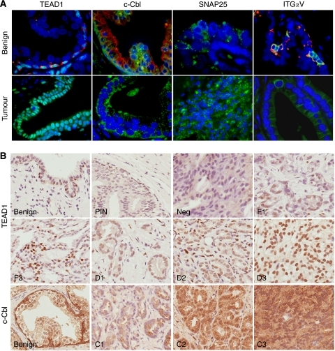 Immunofluorescent and immunohistochemical labelling of benign and cancerous prostate tissue for basal and luminal cell markers. (A) Benign tissue: nuclear TEAD1 labelling (green) was found in K14-positive basal cells (red). Note turquoise double-stained TEAD1-positive nuclei. Cytoplasmic staining for c-Cbl (green) was strong in basal cells and weak in luminal cells as shown by co-labelling with luminal marker K8 (red). SNAP25 (green) staining was luminal in a speckled vesicle-like pattern. Integrin αV (green) was restricted to basal cells, either co-localised to K14 (red) or alone. In prostate tumours, the expression of TEAD1 and c-Cbl was strong despite the absence of a basal layer. Occasional areas of tumour tissue labelled intensely for SNAP25. Integrin αV expression in tumour tissue was extremely weak. Original magnification × 63 to × 100. (B) Scoring systems were derived for both TEAD1 and c-Cbl. TEAD1 scored first as focal (F) or diffuse (D) followed by a score for intensity (1=low to 3=high). Tumour cores lacking TEAD1 expression were scored as negative (neg). Scoring for c-Cbl was based on intensity alone (C1=low to C 3=high). Original magnification × 40.