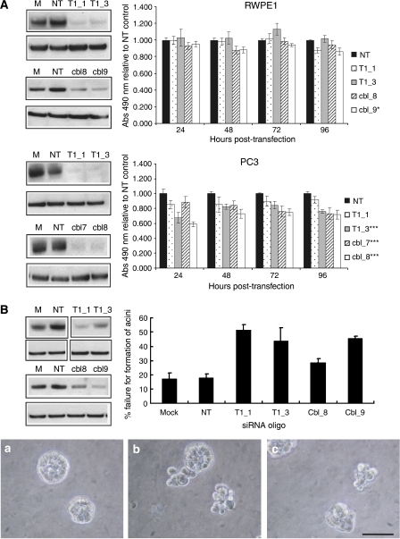 The effects of siRNA-mediated knockdown of TEAD1 or c-Cbl in RWPE1 and PC3 cell lines. RWPE1 and PC3 cells were reverse transfected using two siRNA oligos per target gene. Mock transfection (M) and non-targeting siRNA (NT) were controls. (A) MTS proliferation assays were performed over 96 h post-transfection. Proliferation was normalised to that of the non-targeting control. Mean of three experiments, bars=s.e.m.; *P<0.05; ***P<0.01. Representative western blots at 72 h post-transfection are shown. (B) Transfected RWPE1 cells were grown in Matrigel for 4 days and the % failure for the formation of spherically polarised acini was calculated. Mean of three experiments, bars=s.e.m. Knockdown of TEAD1 and c-Cbl significantly increased the failure rate (P-values; T1_1=0.006, T1_3=0.009; cbl_8=0.08, cbl_9=0.003). Phase-contrast microscopy images of spheres: A=non-targeting control, B=T1_1 and C=cbl_9. Original magnification × 40, bar=50 μm. The level of knockdown remaining after 4 days was confirmed by western blotting. Representative blots for the three experiments are shown.