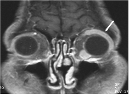 A malignant lymphoma in a 41-year-old woman.A gadolinium enhanced T1-weighted coronal image shows an elongated soft tissue mass (arrow) along the superior lateral aspect of the left eye globe. This lesion shows homogeneous and strong enhancement. Another enhancing nodule is noted at the inferior medial aspect of the left eye globe.