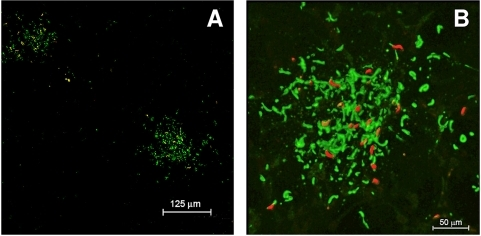 Fluorescence micrographs showing formation of apparent immune complexes after mosquito introduction of saliva and sporozoites into ear pinna of mouse that had been passively immunized with MoAb 3D11.Following mosquito bite, biopsy specimen of ear was fixed with ice-cold acetone and probed with fluorescein-conjugated Protein A, which specifically binds to the Fc component of antibodies. Fig. 6A shows that green staining of Protein A conjugate was restricted to sites where the proboscis had deposited red-fluorescent sporozoites. Fig. 6B is a higher power confocal micrograph showing a 3D reconstruction after the image was processed with Imaris 6.1.5 Bit Plane. The conjugate binds both to Fc portion of antibody attached to sporozoites, and to precipitated material between sporozoites in the vicinity of mosquito probes. No staining by the Protein A conjugate was seen in non-immunized mice challenged with P. berghei sporozoites or in mice passively immunized with 3D11 but challenged with heterologous P. yoelii sporozoites.