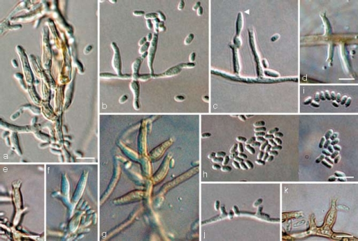 Jattaea mookgoponga, anamorph. a–g, j, k. Conidiophores and conidia (arrow head indicates sterile inflated cell); h, i. conidia; all from CBS H-19986 (holotype); a–c, e–k. SNA medium, d. PDA medium, a–c, h–j: DIC, d–g, k: BF. — Scale bars: a, d, e, h, k = 5 μm; a applies to a–c; e applies to e–g; h applies to h–j.
