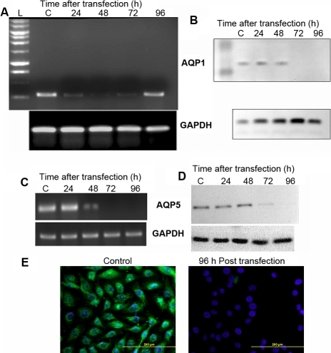Effective silencing of AQP1 and AQP5 using siRNA. Down-regulation of AQP1 expression in HCEC cells using siRNA as determined by (A) RT–PCR and (B) western blot analysis. Down-regulation of AQP5 expression in CEPI17 cells using siRNA as determined by (C) RT–PCR, (D) western blot analysis. Panel E shows down-regulation of AQP5 (green) in CEPI17 cells, 96 h post trasnfection with AQP5 siRNA. AQP5 down regulation was determined by Immunocytochemical analysis (DAPI was used to stain the nucleus).