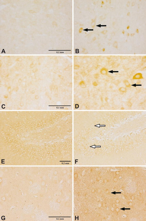 Changes in MOR density in different brain structures of neonatally THIM-treated rats. Images are representative photographs of MOR reaction, visualized as brown/dark rings around cells (pointed with arrows). THIM administration led to increase of MOR density in the PAG (a–d) and the CPU (g–h) (increase pointed with black arrows), but to decrease of MOR density in the DG (e–f) (decrease pointed with white arrows). a DMPAG, control, 8-week, ×400; b DMPAG, 240 μg Hg/kg, 8-week, ×400; c DMPAG, control, 20-week, ×400; d DMPAG, 3,000 μg Hg/kg, 20-week, ×400; e DG, control, 20-week, ×100; f DG, 3,000 μg Hg/kg, 20-week, ×100; g CPU, Control, 20-week, ×400; h CPU, 3,000 μg Hg/kg, 20-week, ×400. For interpretation of the references to color in this figure legend, the reader is referred to the online version of this article